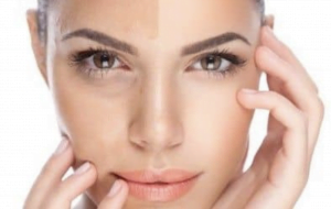 Anti-pigmentation facia